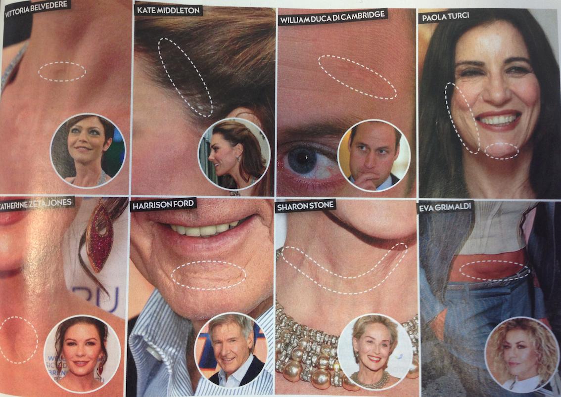 Il trattamento laser per eliminare le cicatrici