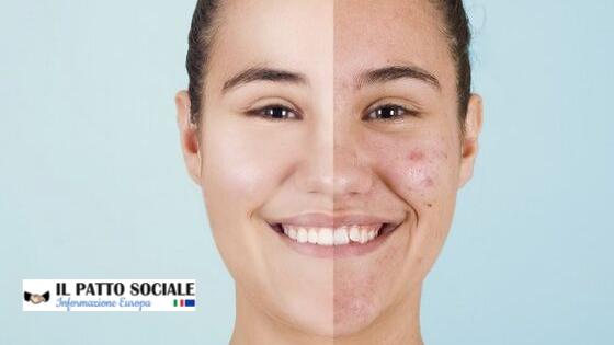 L'acne fa meno paura – Il patto sociale