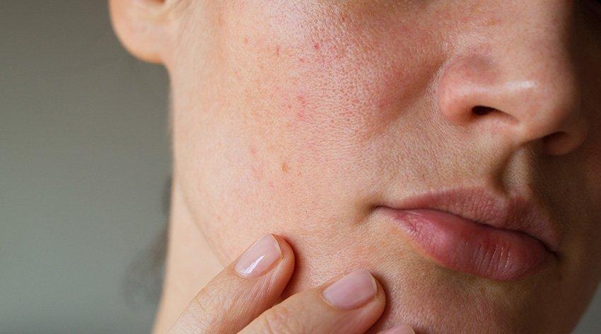Quali sono le cause della pelle grassa?