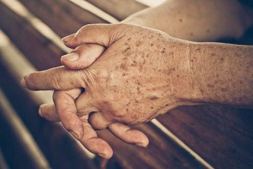 Le macchie senili: perché si formano