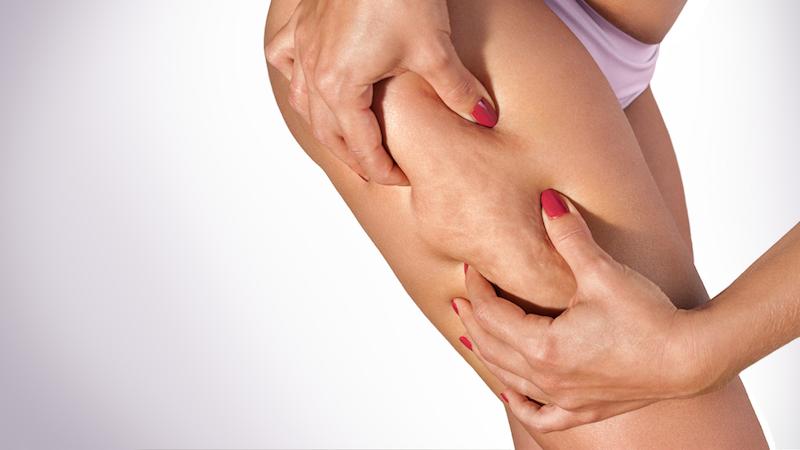 I migliori trattamenti e rimedi contro la cellulite
