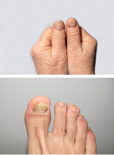 Micosi unghie mani e piedi: i sintomi
