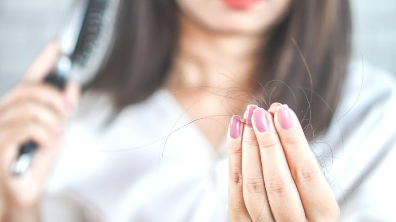 Perdita capelli: quando e perchè avviene