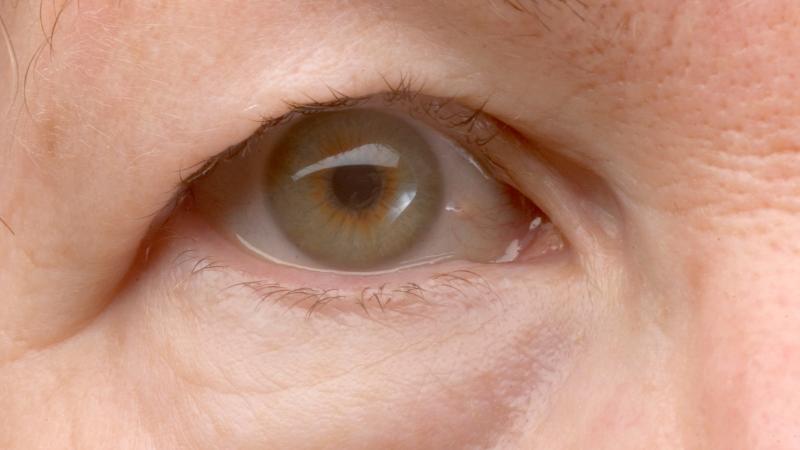 Palpebre cadenti: come risollevare il contorno occhi?
