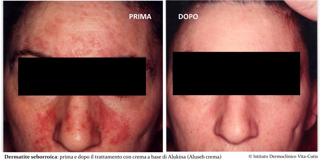 Dermatite seborroica viso: come e perché si manifesta