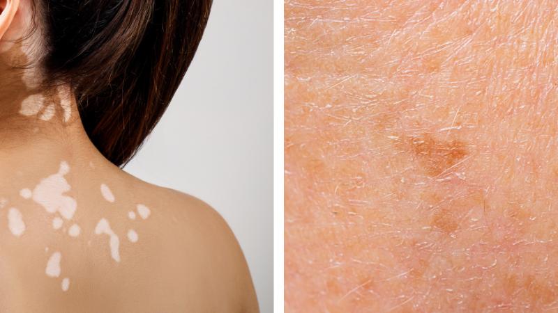 Discromie cutanee: gli eccessi e i difetti di melanina