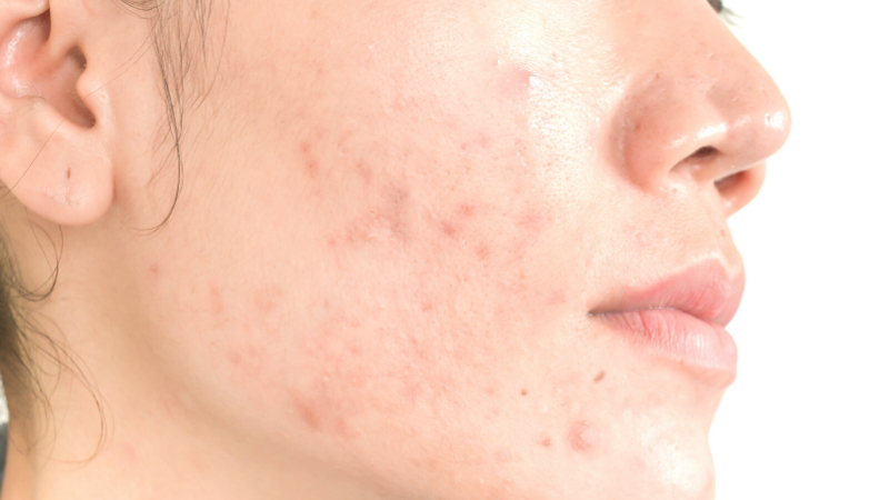 Acne da mascherina: i consigli del dermatologo