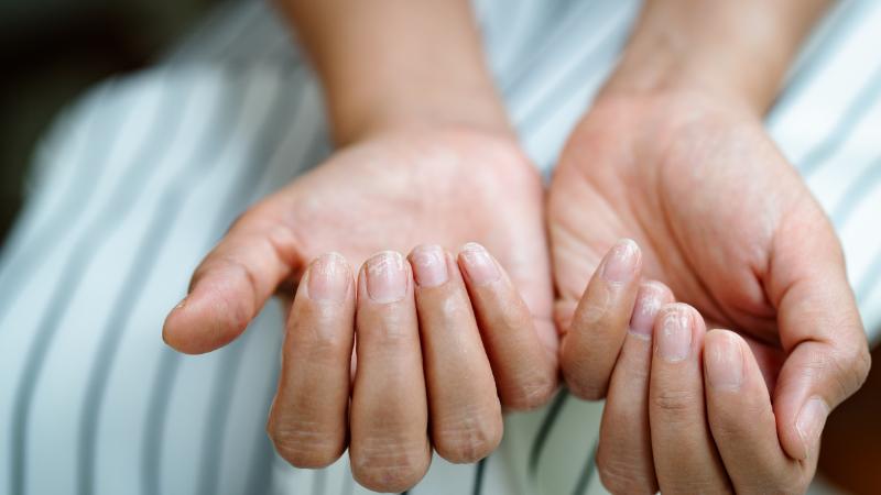Unghie fragili: quali sono le cause?