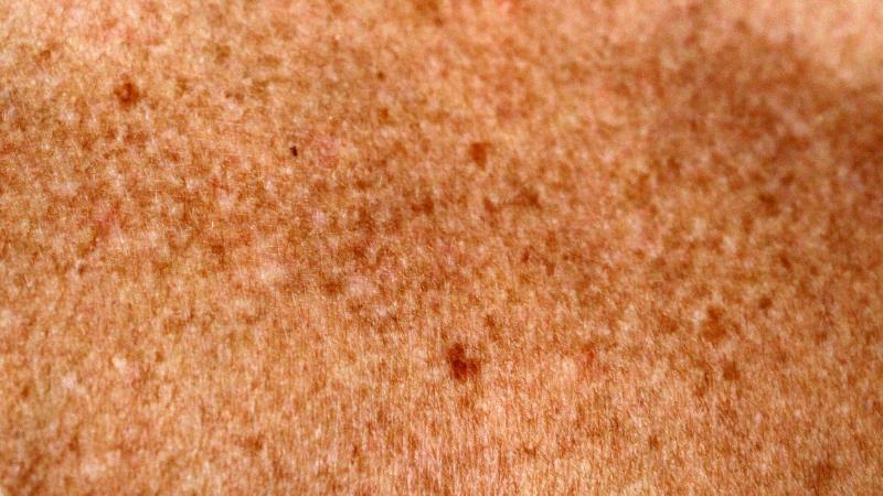 Macchie senili: trattamenti naturali e dermo-estetici