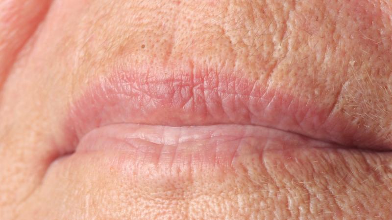 Rughe codice a barre: rimpolpare le labbra ed eliminare le rughe del fumatore