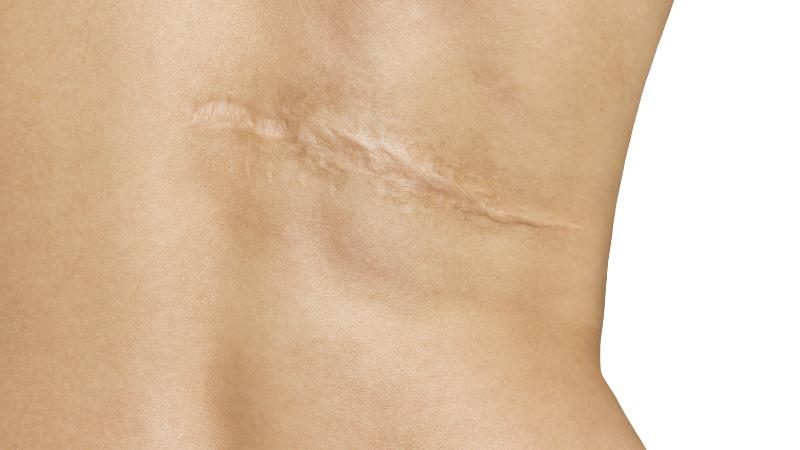 Cicatrici ipertrofiche: ora è possibile migliorarne l'aspetto