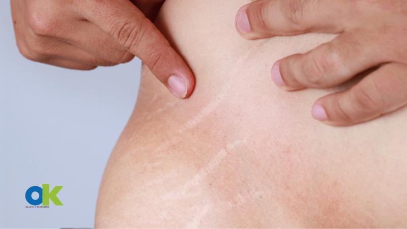 Smagliature bianche: sintomi, cause e fattori di rischio