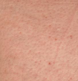 cheratosi pilare della pelle