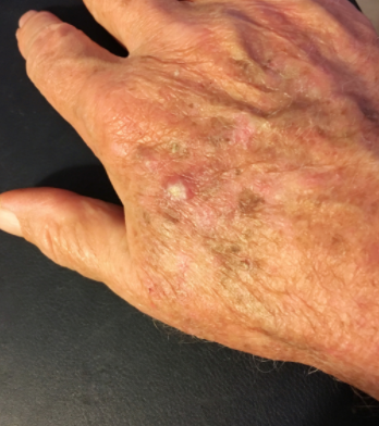 Cheratosi senile della pelle