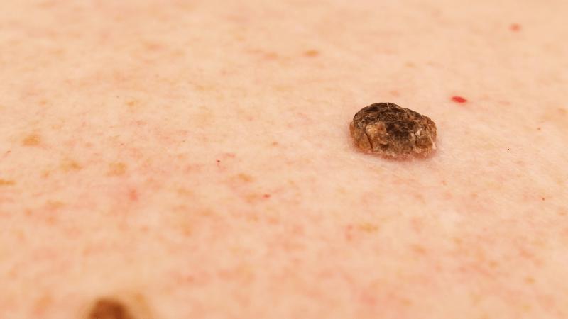 Cheratosi della pelle: conoscerle per prevenirle e curarle