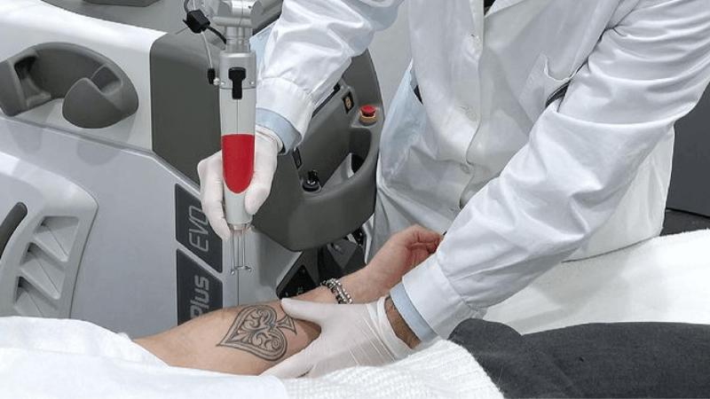 Rimozione tatuaggi: come fare quando si cambia idea