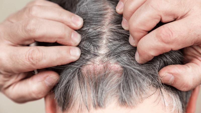 psoriasi in testa: i rimedi