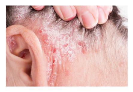 psoriasi del cuoio capelluto: i rimedi efficaci