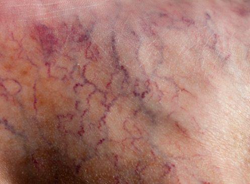 teleangectasie: i sintomi