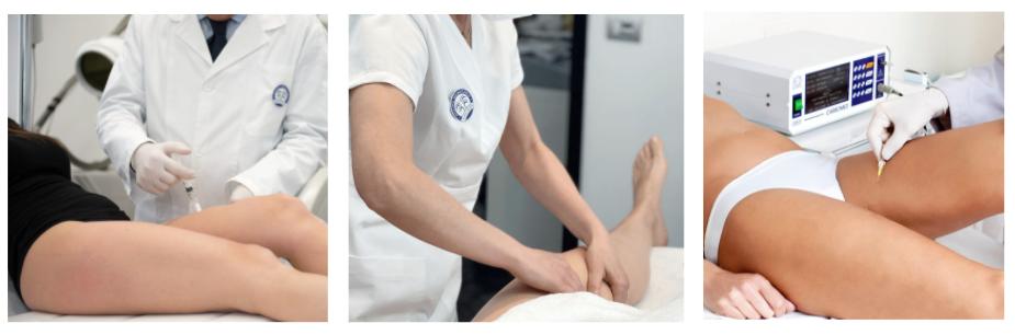 trattamenti per gambe gonfie dermatologo milano