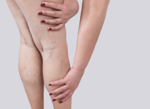 gambe gonfie: come riconoscere i sintomi