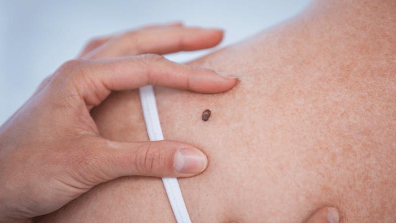 Come prevenire i tumori della pelle