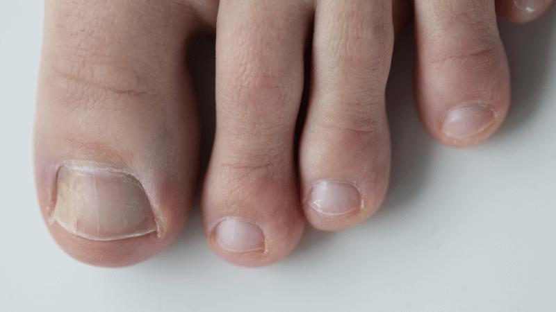 micosi unghie piedi in estate