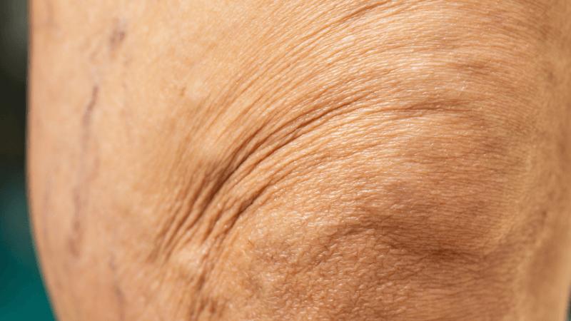 overlap per attenuare rughe delle ginocchia