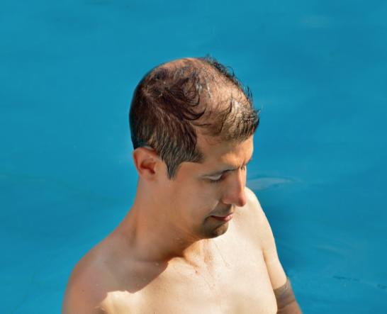 Cuoio capelluto come prevenire arrosamenti