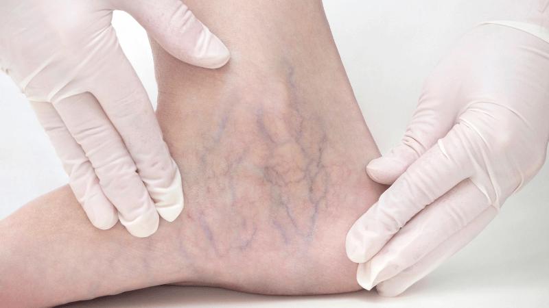 Scleroterapia: trattamento delle malformazioni dei vasi sanguigni